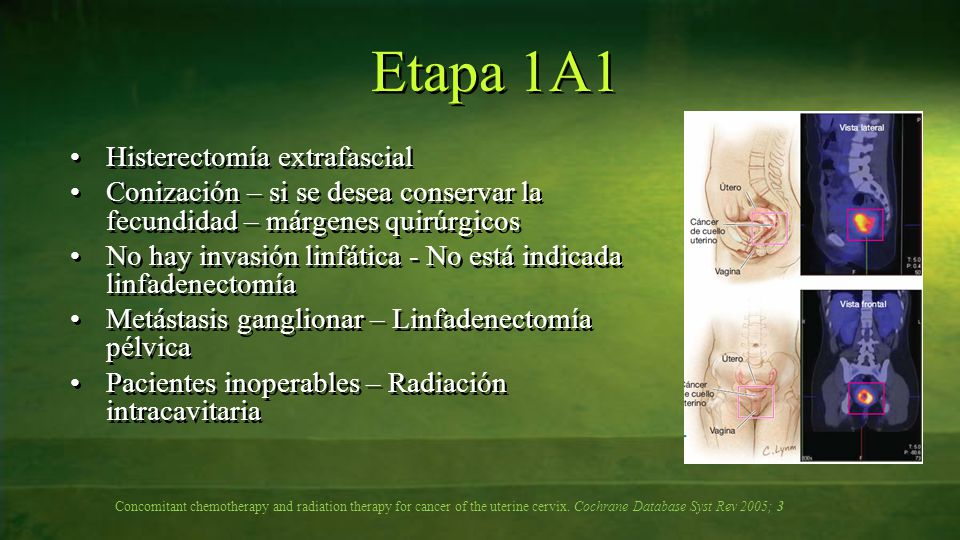 Histerectomía extrafascial Conización – si se desea conservar la fecundidad – márgenes quirúrgicos No hay invasión linfática - No está indicada linfad
