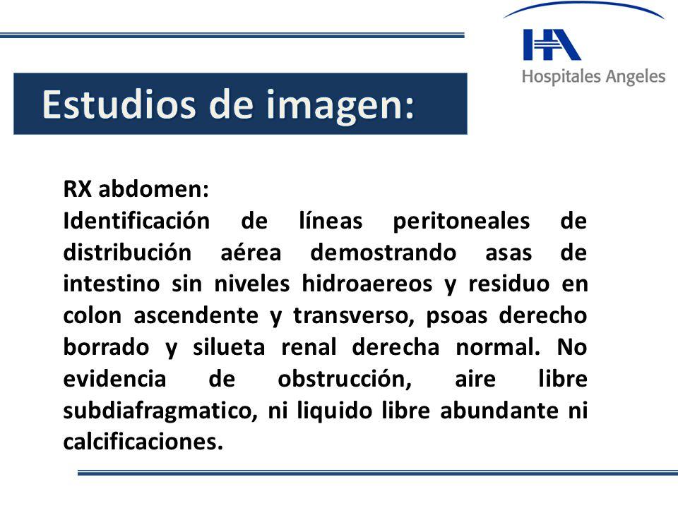 . RX abdomen: Identificación de líneas peritoneales de distribución aérea demostrando asas de intestino sin niveles hidroaereos y residuo en colon asc