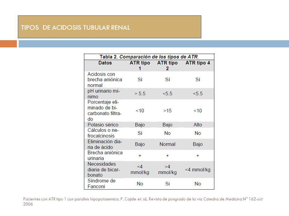 Pacientes con ATR tipo 1 con paralisis hipopotasemica. P. Cajide et. al, Revista de posgrado de la via Catedra de Medicina N° 162-oct 2006 TIPOS DE AC