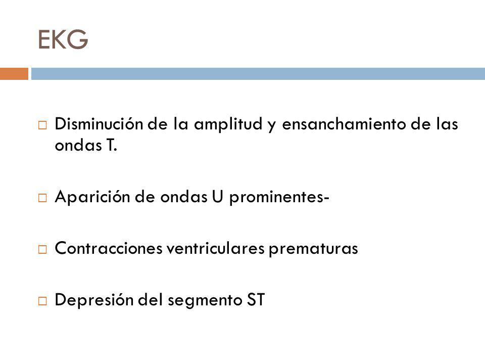 EKG Disminución de la amplitud y ensanchamiento de las ondas T. Aparición de ondas U prominentes- Contracciones ventriculares prematuras Depresión del