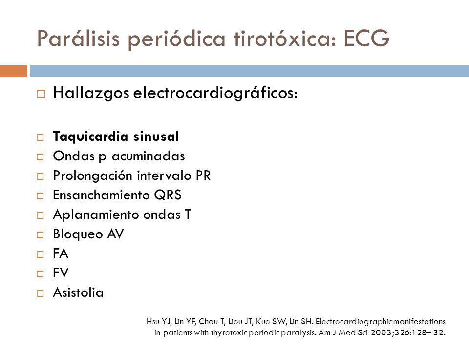 Parálisis periódica tirotóxica: ECG Hallazgos electrocardiográficos: Taquicardia sinusal Ondas p acuminadas Prolongación intervalo PR Ensanchamiento Q