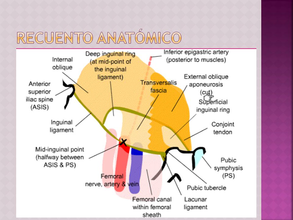 TIPO I: Hernia indirecta: anillo inguinal normal (p.