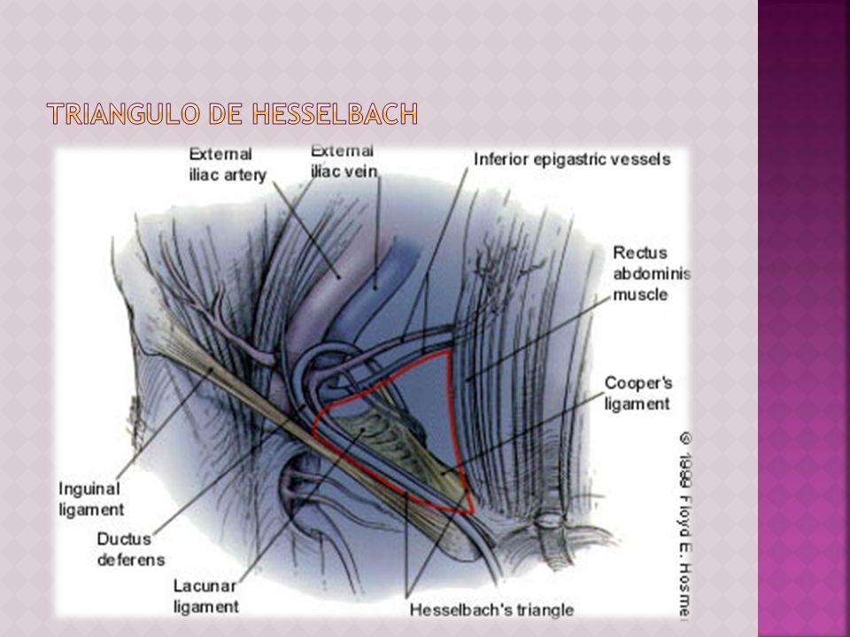 TIPO III: Defecto en la pared posterior A: Hernia inguinal directa B: Hernia inguinal indirecta: anillo inguinal profundo dilatado que en la parte medial comprime o destruye la fascia transversal del triángulo de Hesselbach (P.