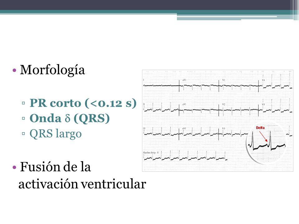 Morfología PR corto (<0.12 s) Onda (QRS) QRS largo Fusión de la activación ventricular