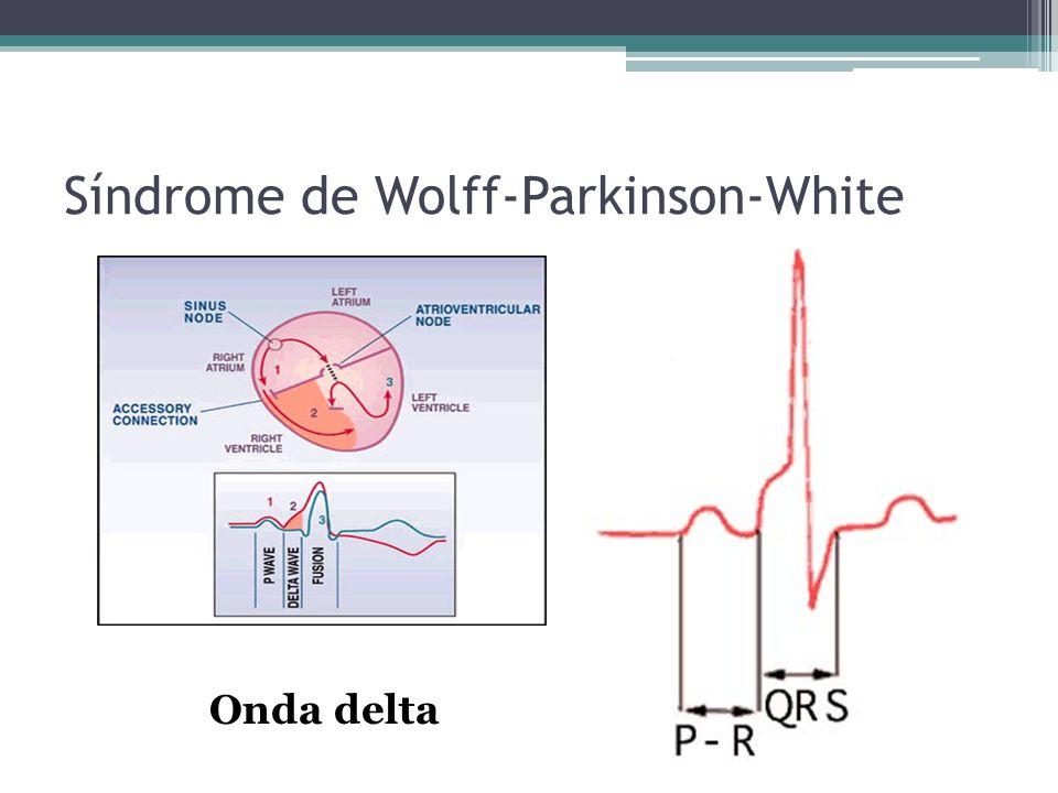 Síndrome de Wolff-Parkinson-White Onda delta