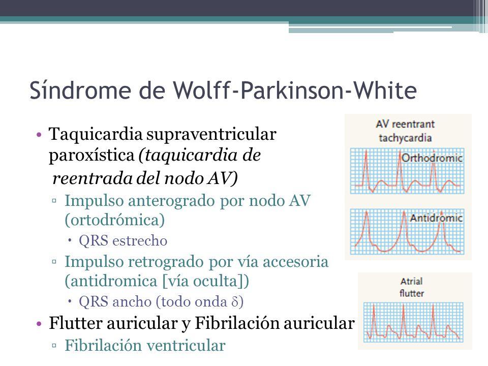 Síndrome de Wolff-Parkinson-White Taquicardia supraventricular paroxística (taquicardia de reentrada del nodo AV) Impulso anterogrado por nodo AV (ort