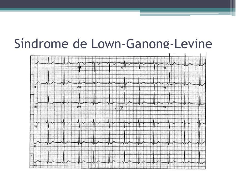 Síndrome de Lown-Ganong-Levine