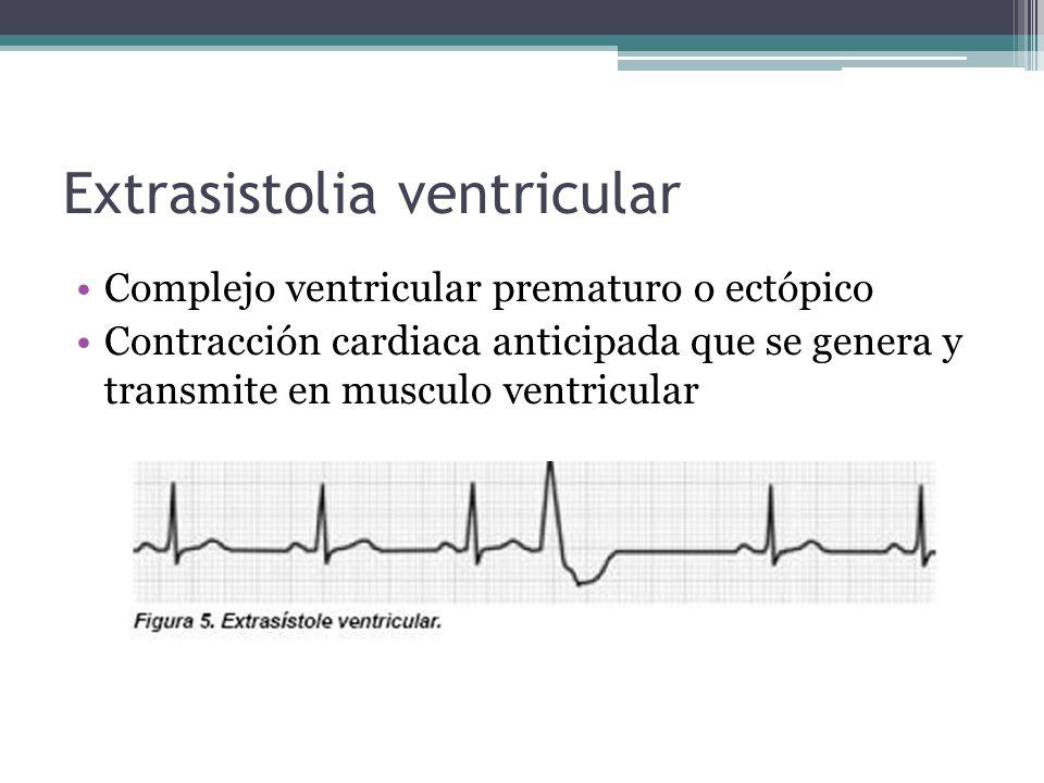 Extrasistolia ventricular Complejo ventricular prematuro o ectópico Contracción cardiaca anticipada que se genera y transmite en musculo ventricular
