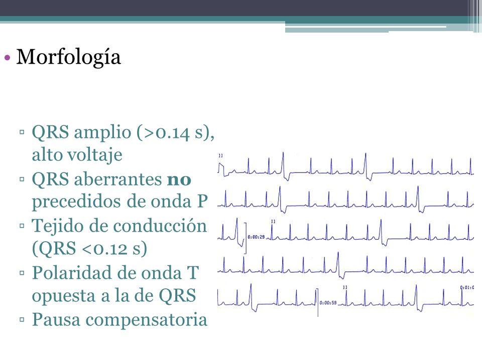 Morfología QRS amplio (>0.14 s), alto voltaje QRS aberrantes no precedidos de onda P Tejido de conducción (QRS <0.12 s) Polaridad de onda T opuesta a