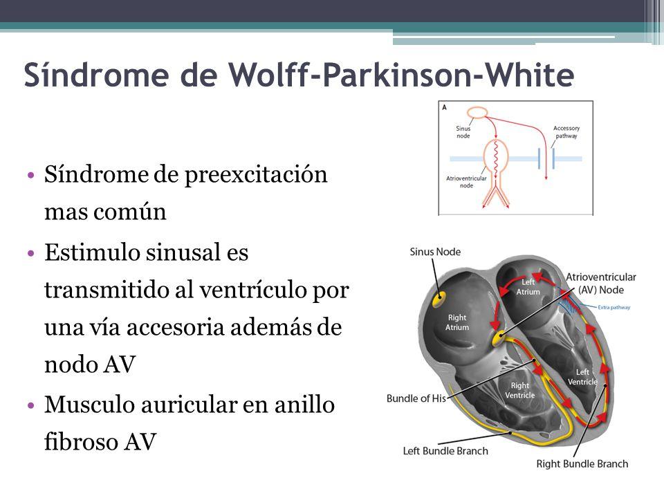 Síndrome de Wolff-Parkinson-White Síndrome de preexcitación mas común Estimulo sinusal es transmitido al ventrículo por una vía accesoria además de no