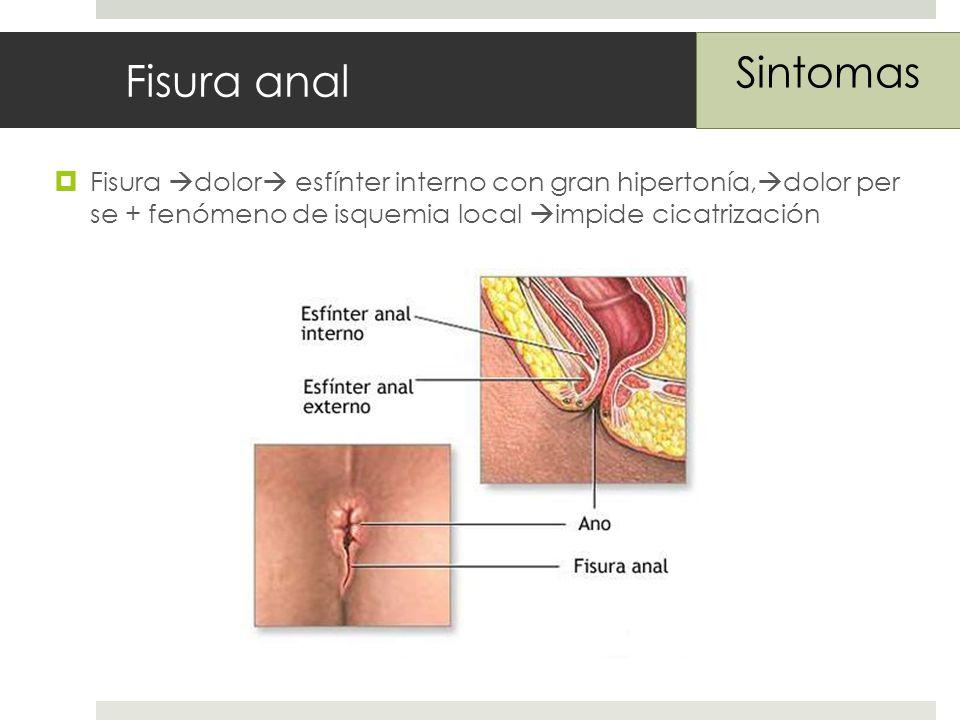 Fisura anal Fisura dolor esfínter interno con gran hipertonía, dolor per se + fenómeno de isquemia local impide cicatrización Sintomas