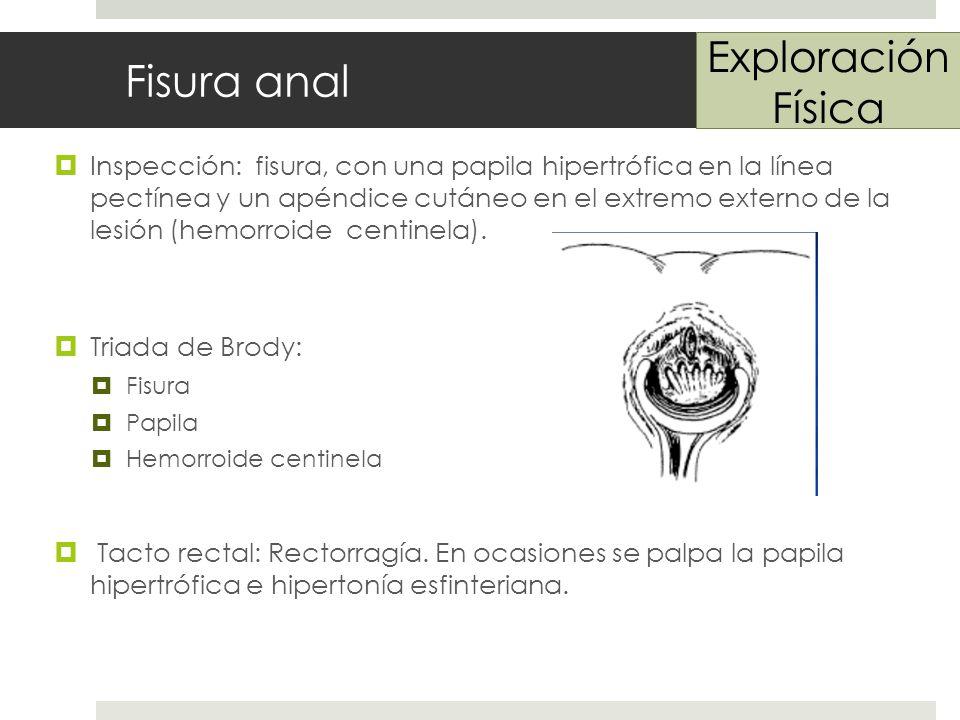 Fisura anal Inspección: fisura, con una papila hipertrófica en la línea pectínea y un apéndice cutáneo en el extremo externo de la lesión (hemorroide centinela).