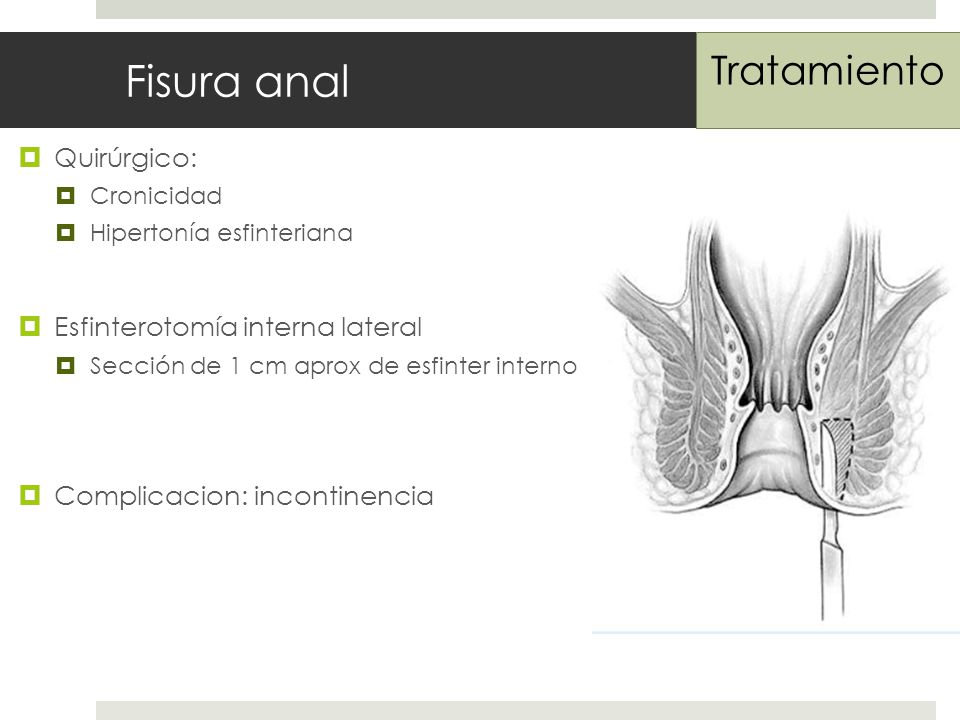 Fisura anal Quirúrgico: Cronicidad Hipertonía esfinteriana Esfinterotomía interna lateral Sección de 1 cm aprox de esfinter interno Complicacion: incontinencia Tratamiento