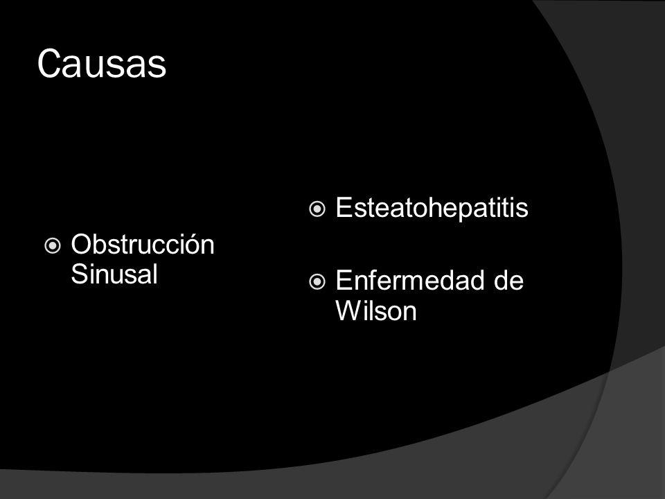 Causas Obstrucción Sinusal Esteatohepatitis Enfermedad de Wilson
