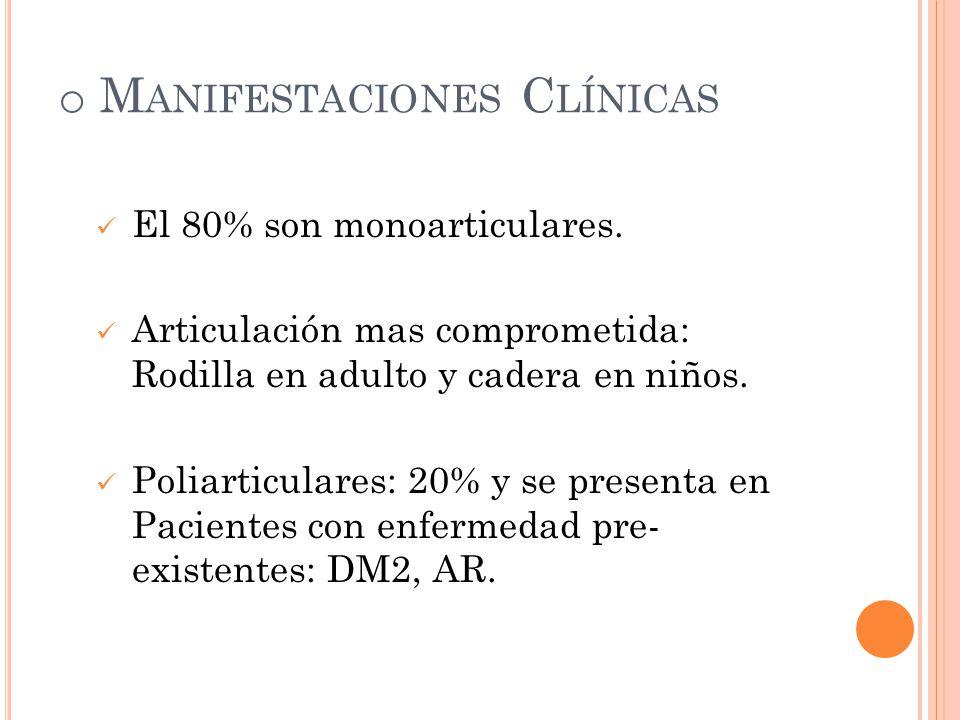 o M ANIFESTACIONES C LÍNICAS El 80% son monoarticulares. Articulación mas comprometida: Rodilla en adulto y cadera en niños. Poliarticulares: 20% y se