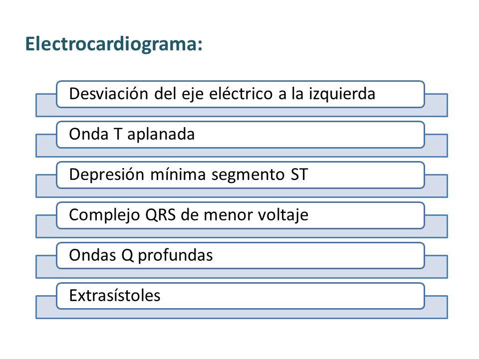 Electrocardiograma: Desviación del eje eléctrico a la izquierdaOnda T aplanadaDepresión mínima segmento STComplejo QRS de menor voltajeOndas Q profundasExtrasístoles