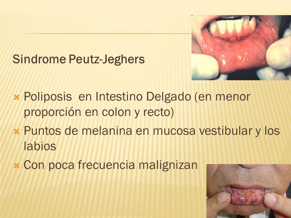 Sindrome Peutz-Jeghers Poliposis en Intestino Delgado (en menor proporción en colon y recto) Puntos de melanina en mucosa vestibular y los labios Con