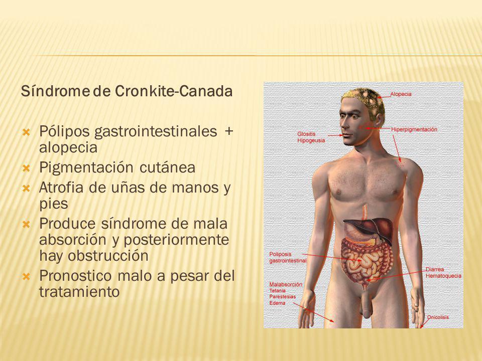 Síndrome de Cronkite-Canada Pólipos gastrointestinales + alopecia Pigmentación cutánea Atrofia de uñas de manos y pies Produce síndrome de mala absorc