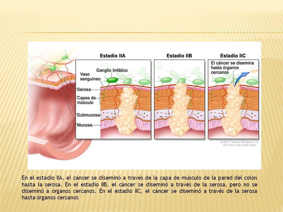 En el estadio IIA, el cáncer se diseminó a través de la capa de músculo de la pared del colon hasta la serosa. En el estadio IIB, el cáncer se disemin