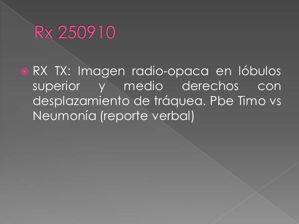 RX TX: Imagen radio-opaca en lóbulos superior y medio derechos con desplazamiento de tráquea.