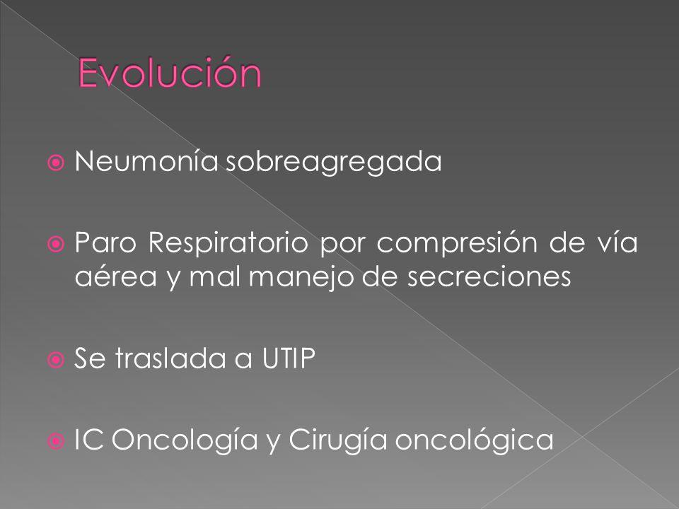 Neumonía sobreagregada Paro Respiratorio por compresión de vía aérea y mal manejo de secreciones Se traslada a UTIP IC Oncología y Cirugía oncológica