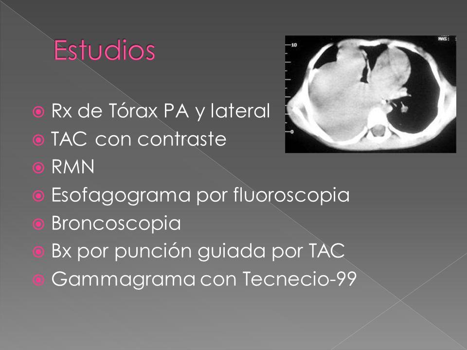Rx de Tórax PA y lateral TAC con contraste RMN Esofagograma por fluoroscopia Broncoscopia Bx por punción guiada por TAC Gammagrama con Tecnecio-99