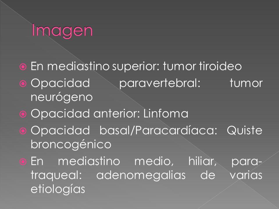 En mediastino superior: tumor tiroideo Opacidad paravertebral: tumor neurógeno Opacidad anterior: Linfoma Opacidad basal/Paracardíaca: Quiste broncogénico En mediastino medio, hiliar, para- traqueal: adenomegalias de varias etiologías