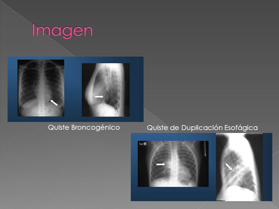 Quiste Broncogénico Quiste de Duplicación Esofágica