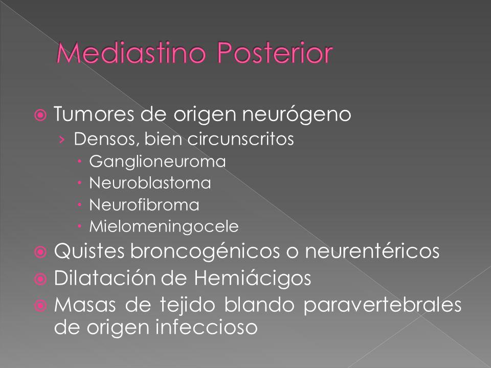 Tumores de origen neurógeno Densos, bien circunscritos Ganglioneuroma Neuroblastoma Neurofibroma Mielomeningocele Quistes broncogénicos o neurentéricos Dilatación de Hemiácigos Masas de tejido blando paravertebrales de origen infeccioso