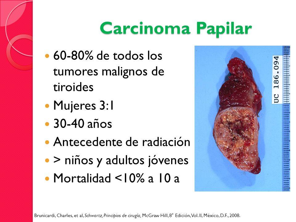 Carcinoma Papilar 60-80% de todos los tumores malignos de tiroides Mujeres 3:1 30-40 años Antecedente de radiación > niños y adultos jóvenes Mortalida