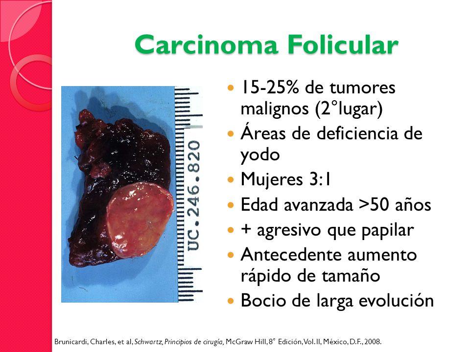 Carcinoma Folicular 15-25% de tumores malignos (2°lugar) Áreas de deficiencia de yodo Mujeres 3:1 Edad avanzada >50 años + agresivo que papilar Antece