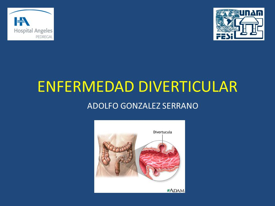 ENFERMEDAD DIVERTICULAR ADOLFO GONZALEZ SERRANO