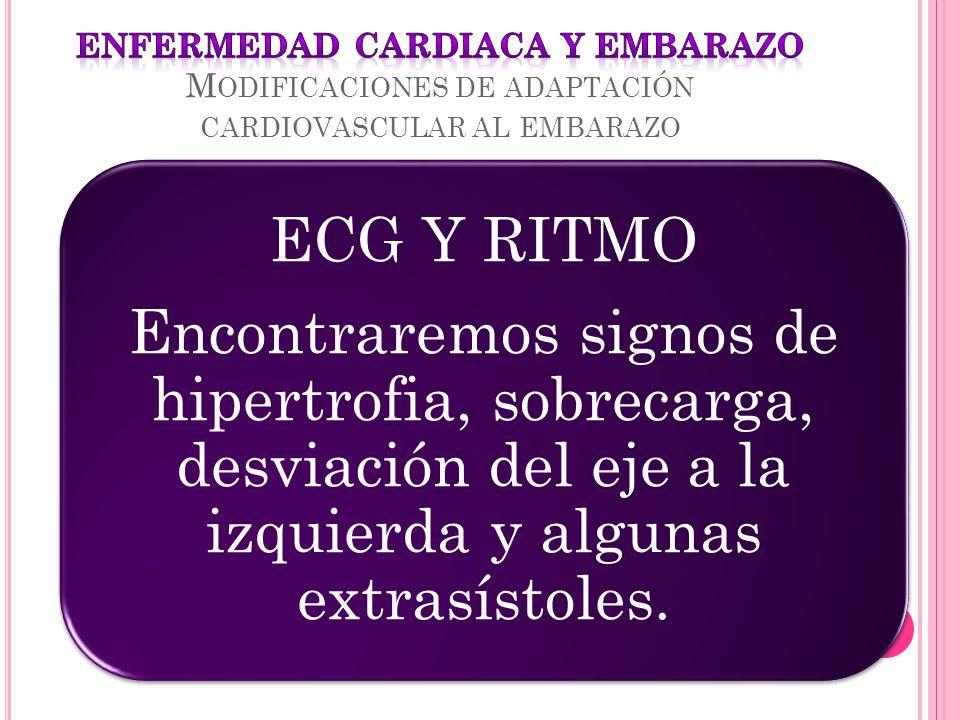 ECG Y RITMO Encontraremos signos de hipertrofia, sobrecarga, desviación del eje a la izquierda y algunas extrasístoles.