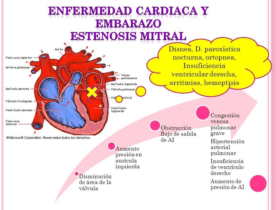 Disminución de área de la válvula Aumento presión en aurícula izquierda Obstrucción flujo de salida de AI Congestión venosa pulmonar grave Hipertensió