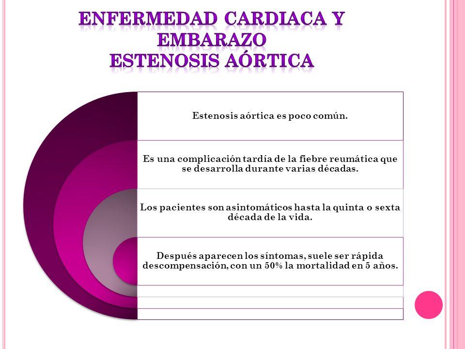 Estenosis aórtica es poco común. Es una complicación tardía de la fiebre reumática que se desarrolla durante varias décadas. Los pacientes son asintom
