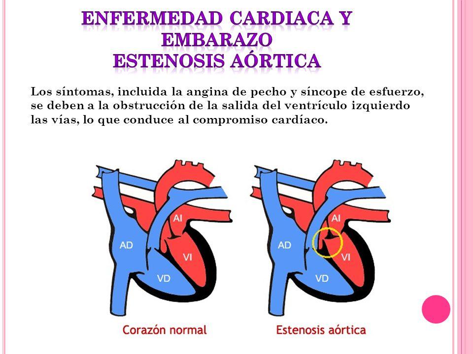 Los síntomas, incluida la angina de pecho y síncope de esfuerzo, se deben a la obstrucción de la salida del ventrículo izquierdo las vías, lo que cond