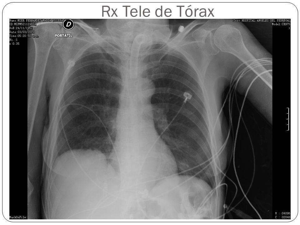 Rx Tele de Tórax
