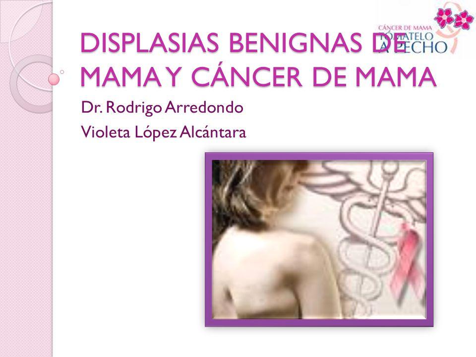 DISPLASIAS BENIGNAS DE MAMA Y CÁNCER DE MAMA Dr. Rodrigo Arredondo Violeta López Alcántara