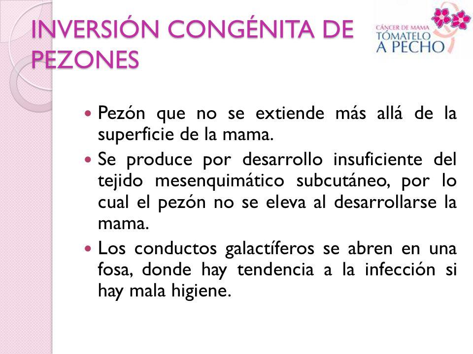 INVERSIÓN CONGÉNITA DE PEZONES Pezón que no se extiende más allá de la superficie de la mama. Se produce por desarrollo insuficiente del tejido mesenq