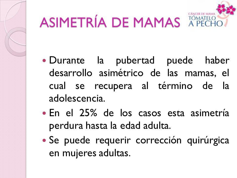 ASIMETRÍA DE MAMAS Durante la pubertad puede haber desarrollo asimétrico de las mamas, el cual se recupera al término de la adolescencia. En el 25% de