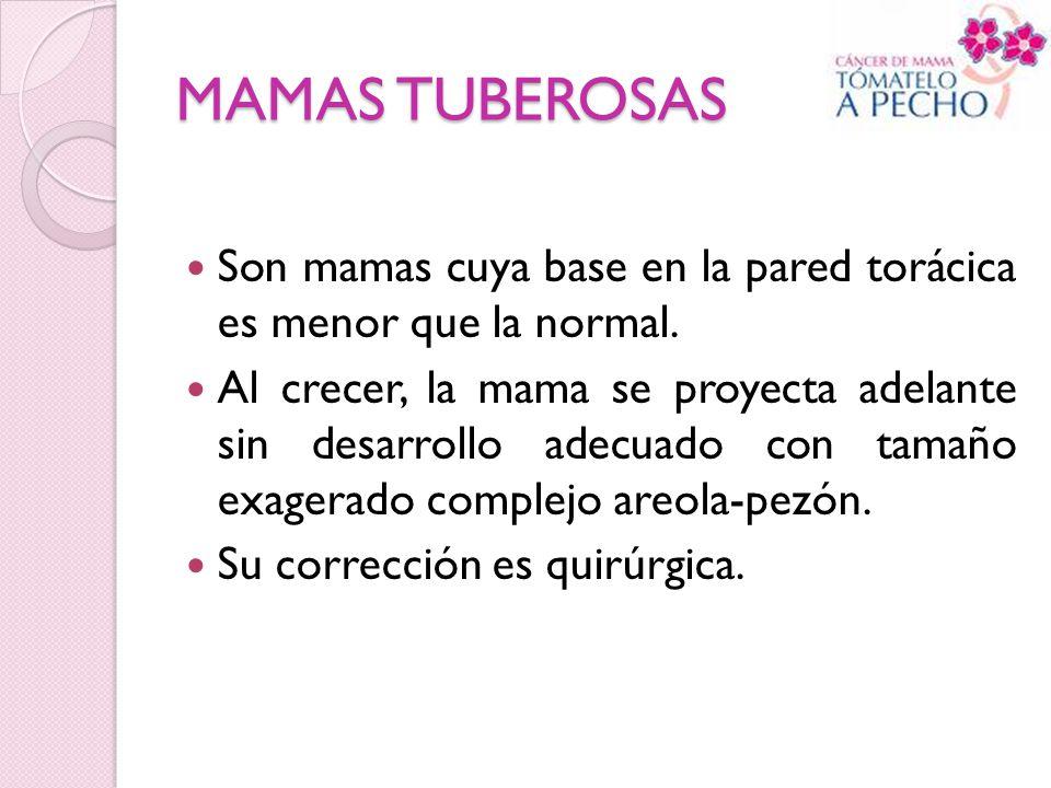 MAMAS TUBEROSAS Son mamas cuya base en la pared torácica es menor que la normal. Al crecer, la mama se proyecta adelante sin desarrollo adecuado con t