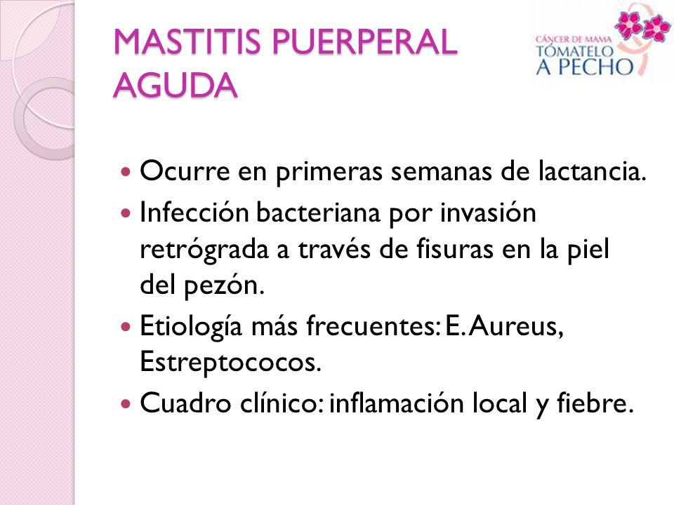 MASTITIS PUERPERAL AGUDA Ocurre en primeras semanas de lactancia. Infección bacteriana por invasión retrógrada a través de fisuras en la piel del pezó