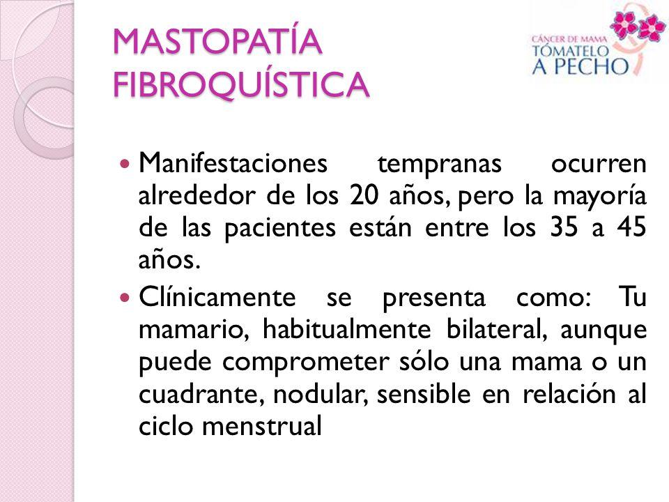 MASTOPATÍA FIBROQUÍSTICA Manifestaciones tempranas ocurren alrededor de los 20 años, pero la mayoría de las pacientes están entre los 35 a 45 años. Cl