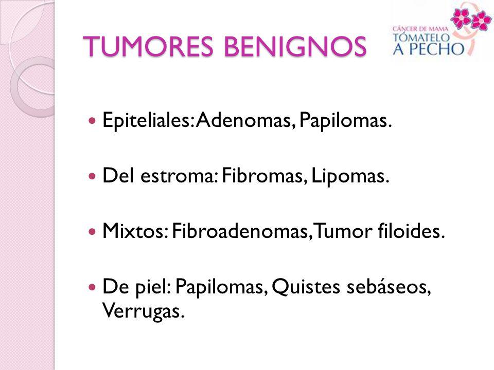 TUMORES BENIGNOS Epiteliales: Adenomas, Papilomas. Del estroma: Fibromas, Lipomas. Mixtos: Fibroadenomas, Tumor filoides. De piel: Papilomas, Quistes