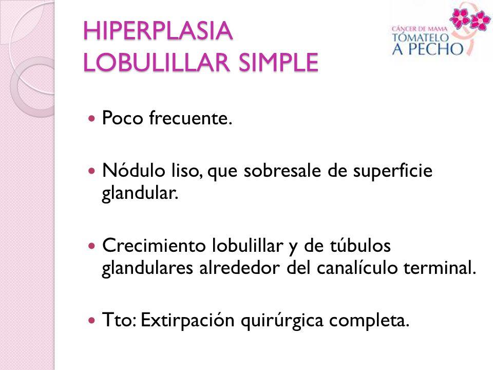 HIPERPLASIA LOBULILLAR SIMPLE Poco frecuente. Nódulo liso, que sobresale de superficie glandular. Crecimiento lobulillar y de túbulos glandulares alre