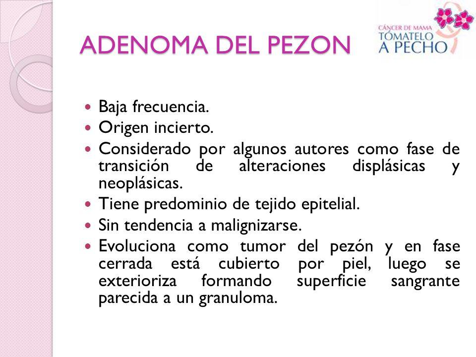 ADENOMA DEL PEZON Baja frecuencia. Origen incierto. Considerado por algunos autores como fase de transición de alteraciones displásicas y neoplásicas.