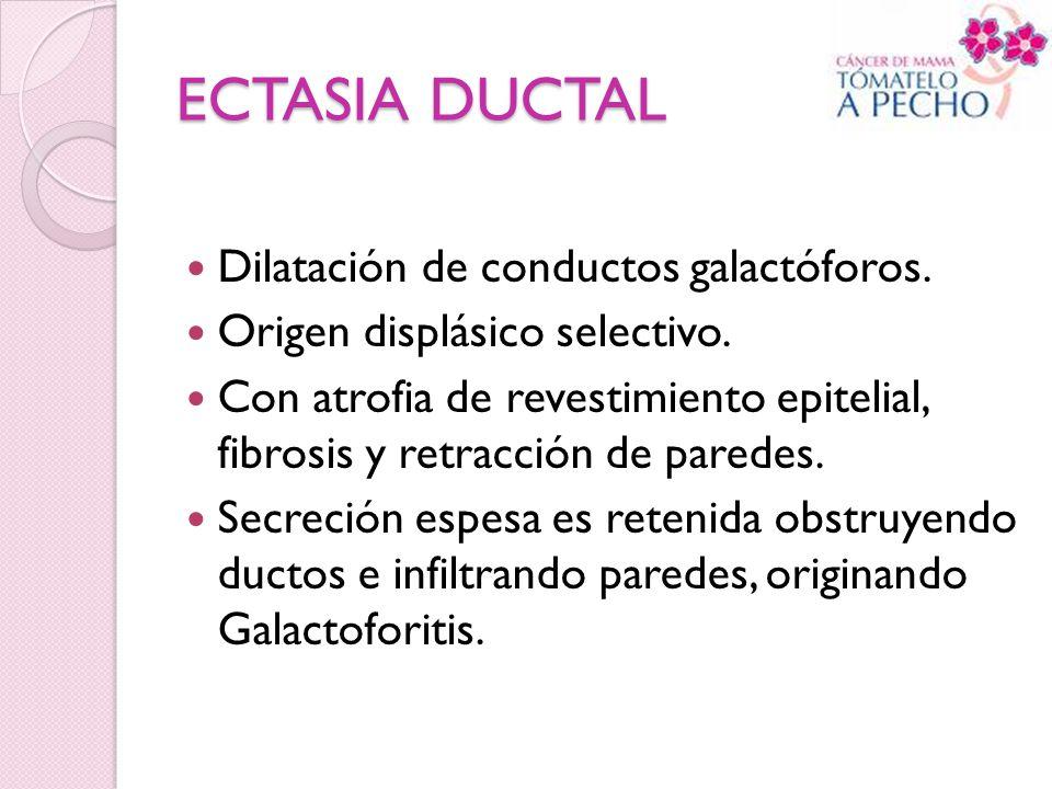 ECTASIA DUCTAL Dilatación de conductos galactóforos. Origen displásico selectivo. Con atrofia de revestimiento epitelial, fibrosis y retracción de par