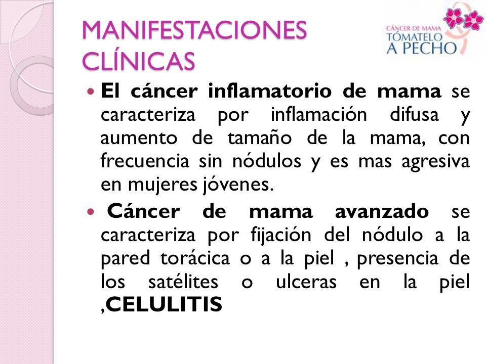 MANIFESTACIONES CLÍNICAS El cáncer inflamatorio de mama se caracteriza por inflamación difusa y aumento de tamaño de la mama, con frecuencia sin nódul