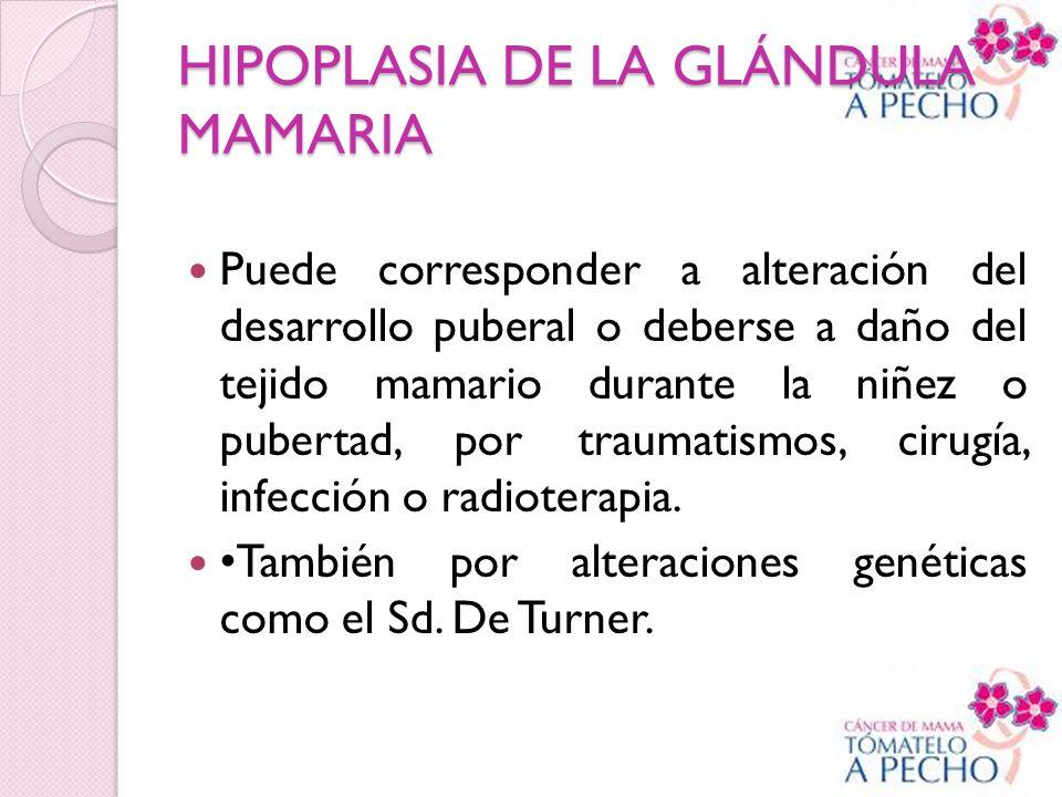 HIPOPLASIA DE LA GLÁNDULA MAMARIA Puede corresponder a alteración del desarrollo puberal o deberse a daño del tejido mamario durante la niñez o pubert