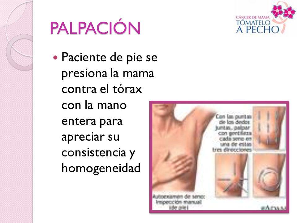 PALPACIÓN Paciente de pie se presiona la mama contra el tórax con la mano entera para apreciar su consistencia y homogeneidad